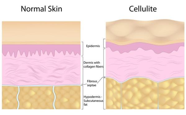 Cellulite image