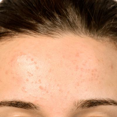 Oily clogged skin