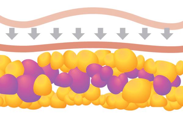 HIFU body shaping procedure