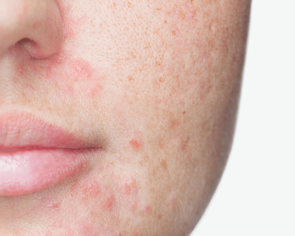 Redness from Acne
