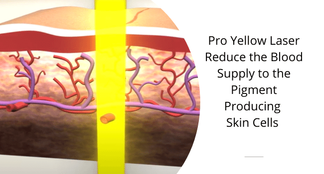 pro yellow laser how does it work