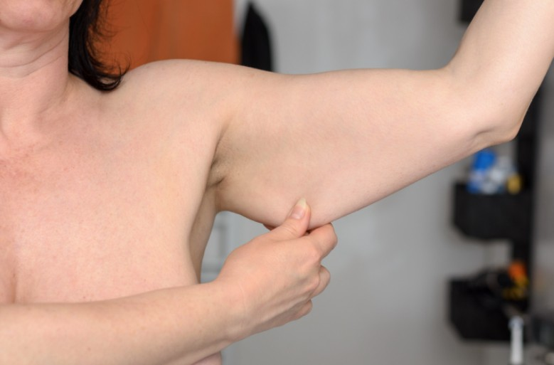 Arm extra skin after weight loss
