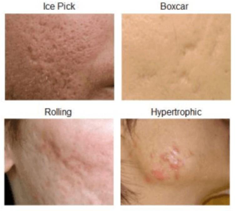 acne scar treatment singapore