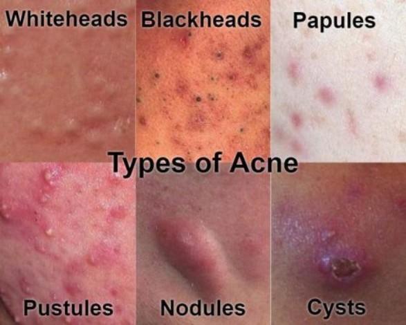 active acne types
