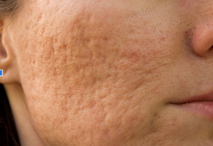 acne scar singapore