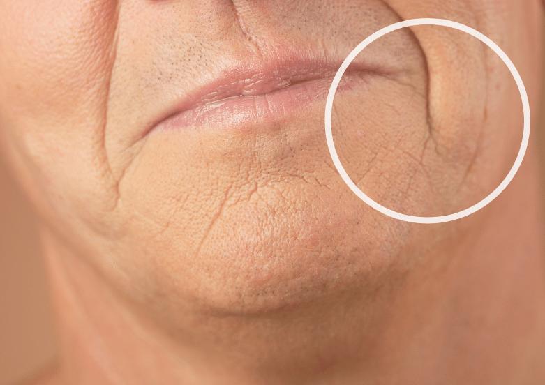laugh line wrinkles treatment singapore