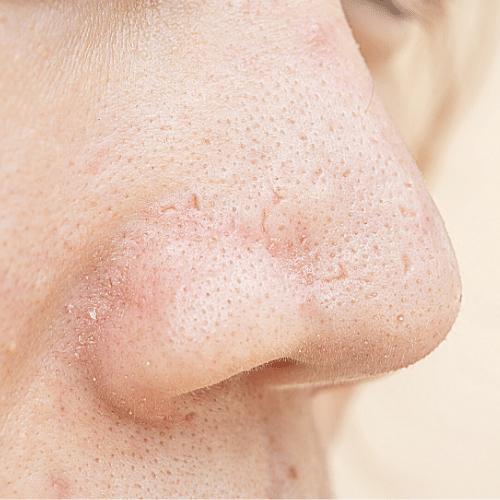 enlarge pores