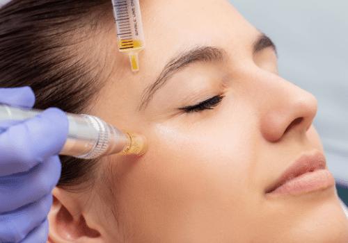 Rejuvenate Skin Around the Eye Area