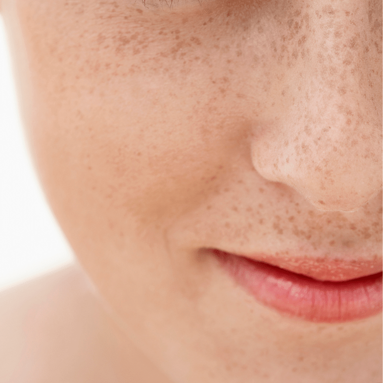 freckles removal