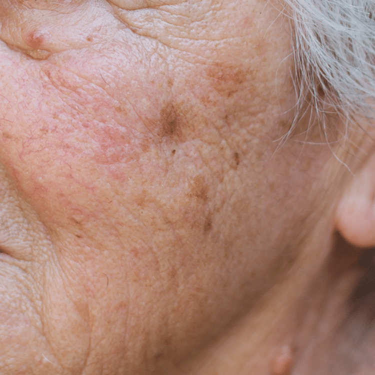 age spot removal laser