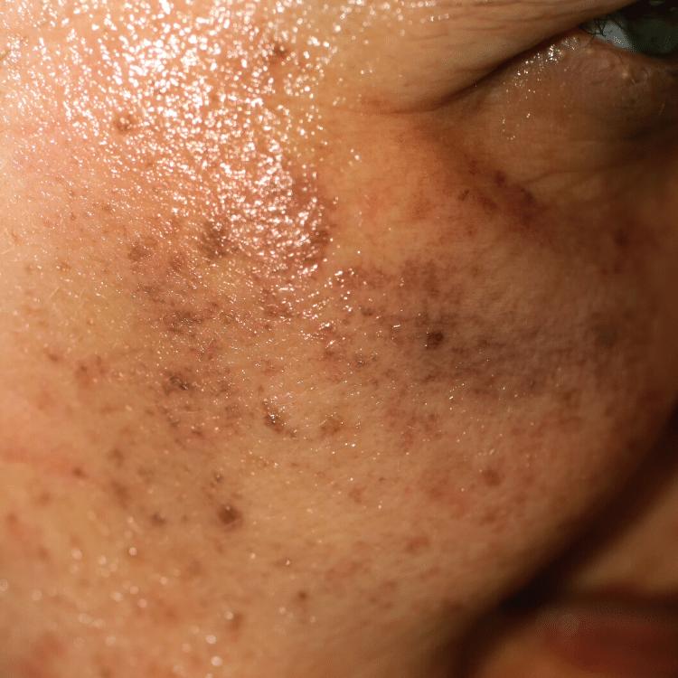 hori's nevus pigmentation