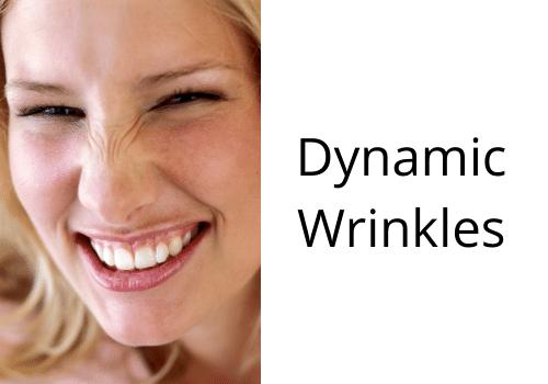 dynamic wrinkles