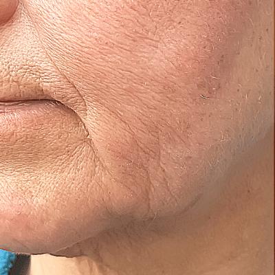 aging skin singapore