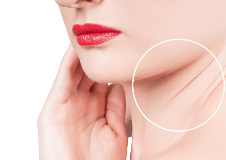 neck line wrinkles singapore