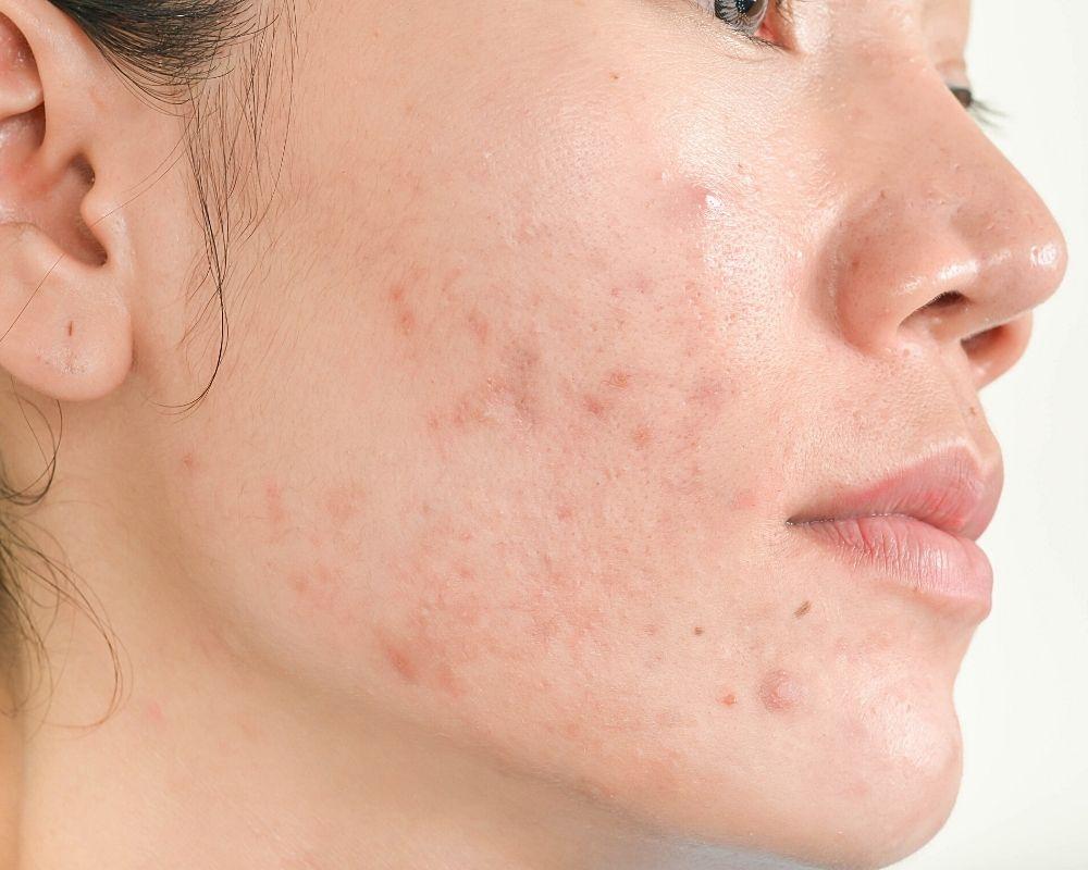 Atrophic Acne Scars Singapore