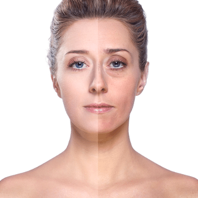 treatment for dull and uneven skin tone