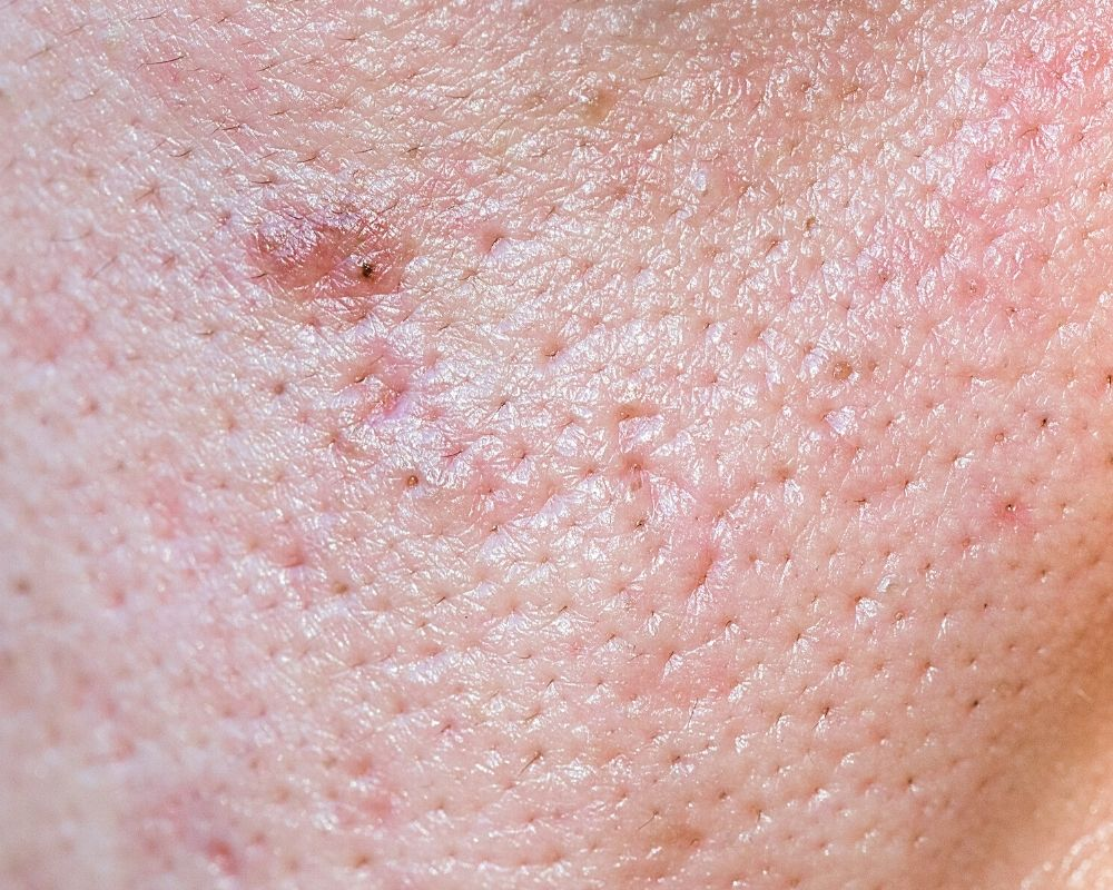 Enlarged Pores Singapore Acne Scars
