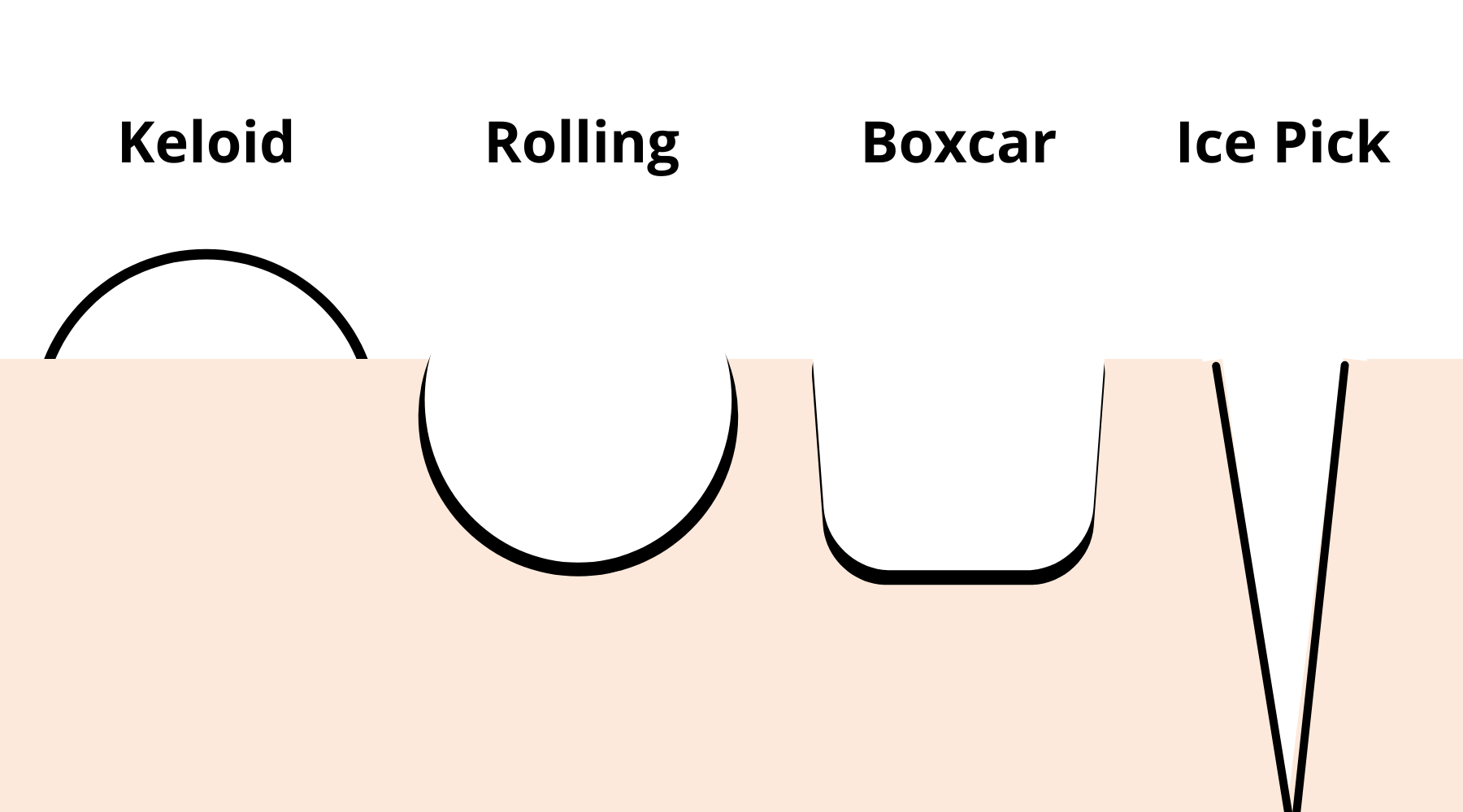 TYPE OF ACNE SCARS