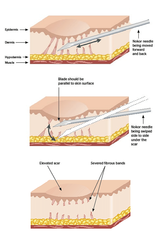 subcision acne scare treatment singapore