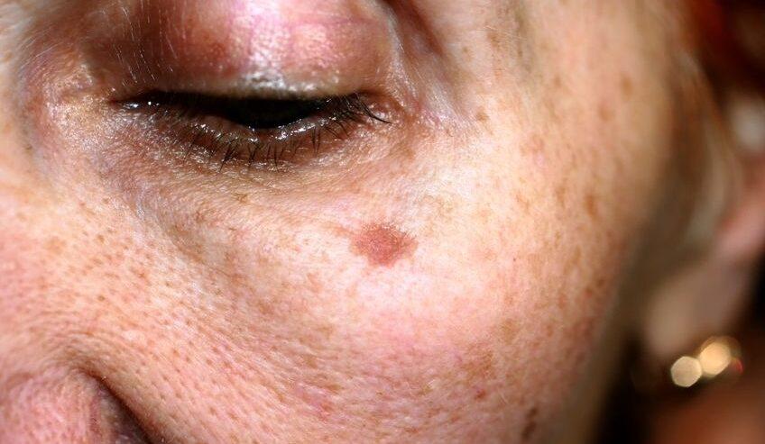 science of skin pigmentation