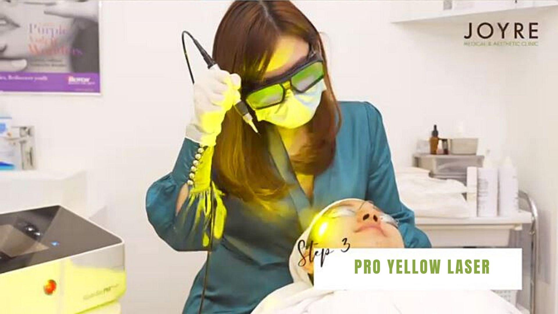 pro yellow laser singapore