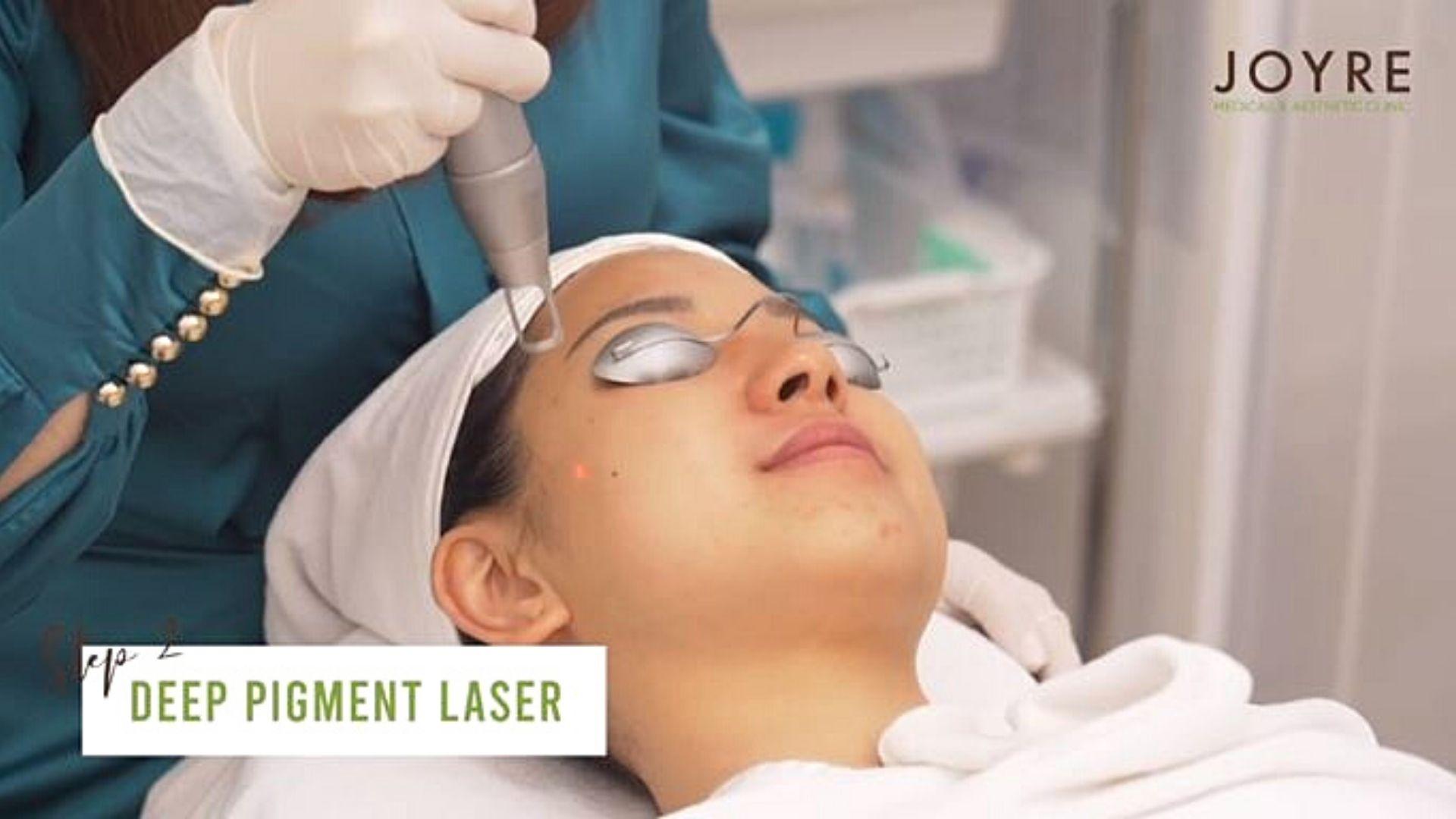 deep pigmentation laser