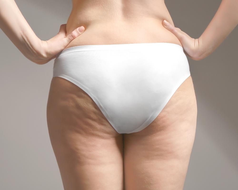 Singapore Fat Buttocks