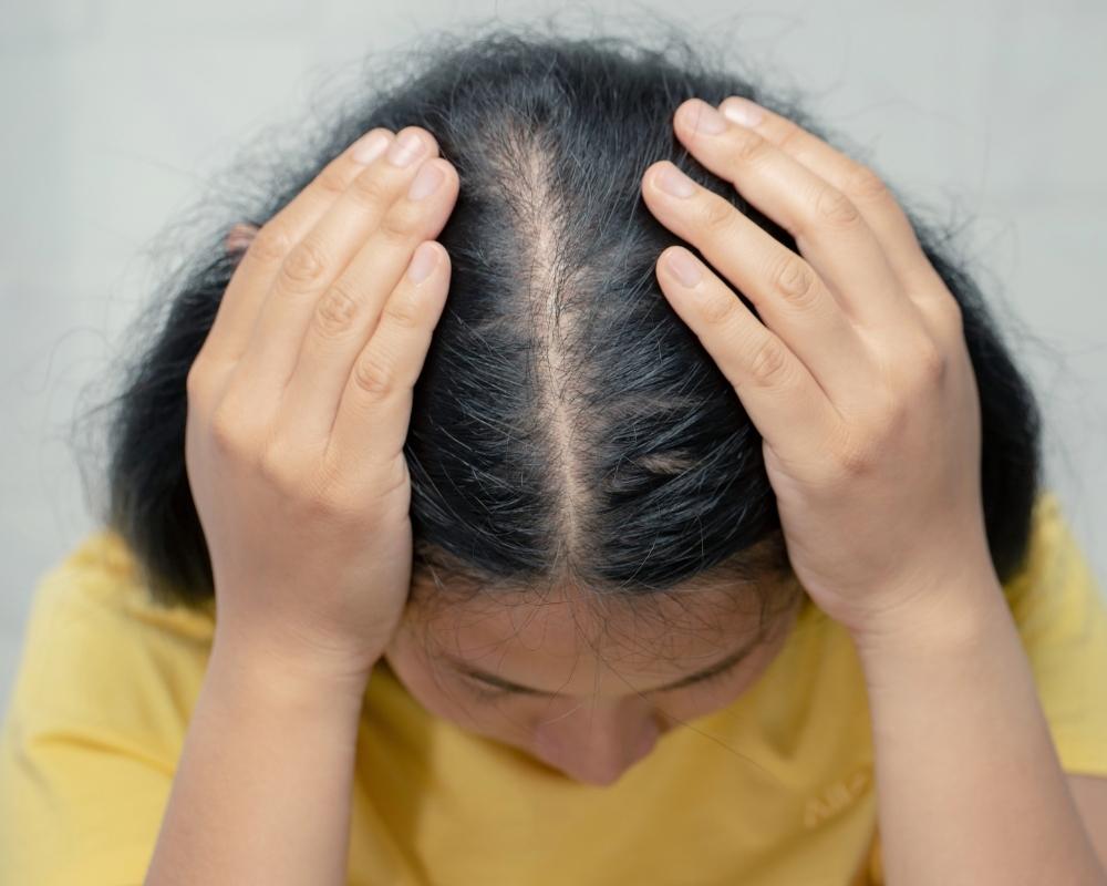 Receding Hairline Singapore