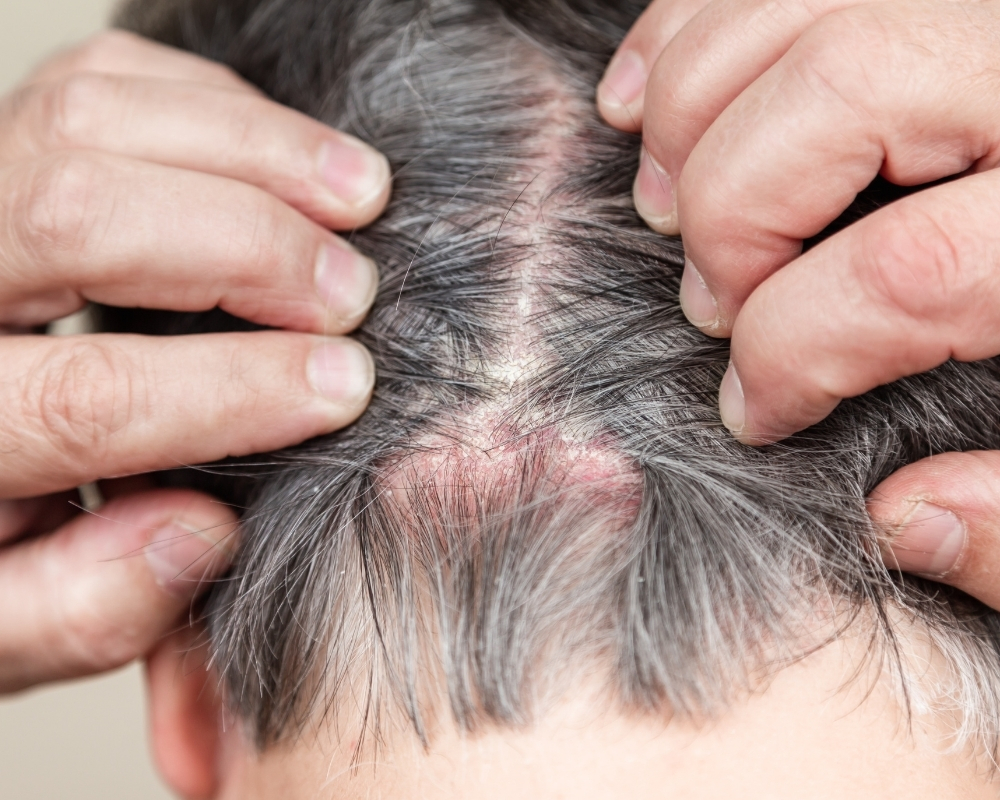 Scaly Patches Scalp Singapore