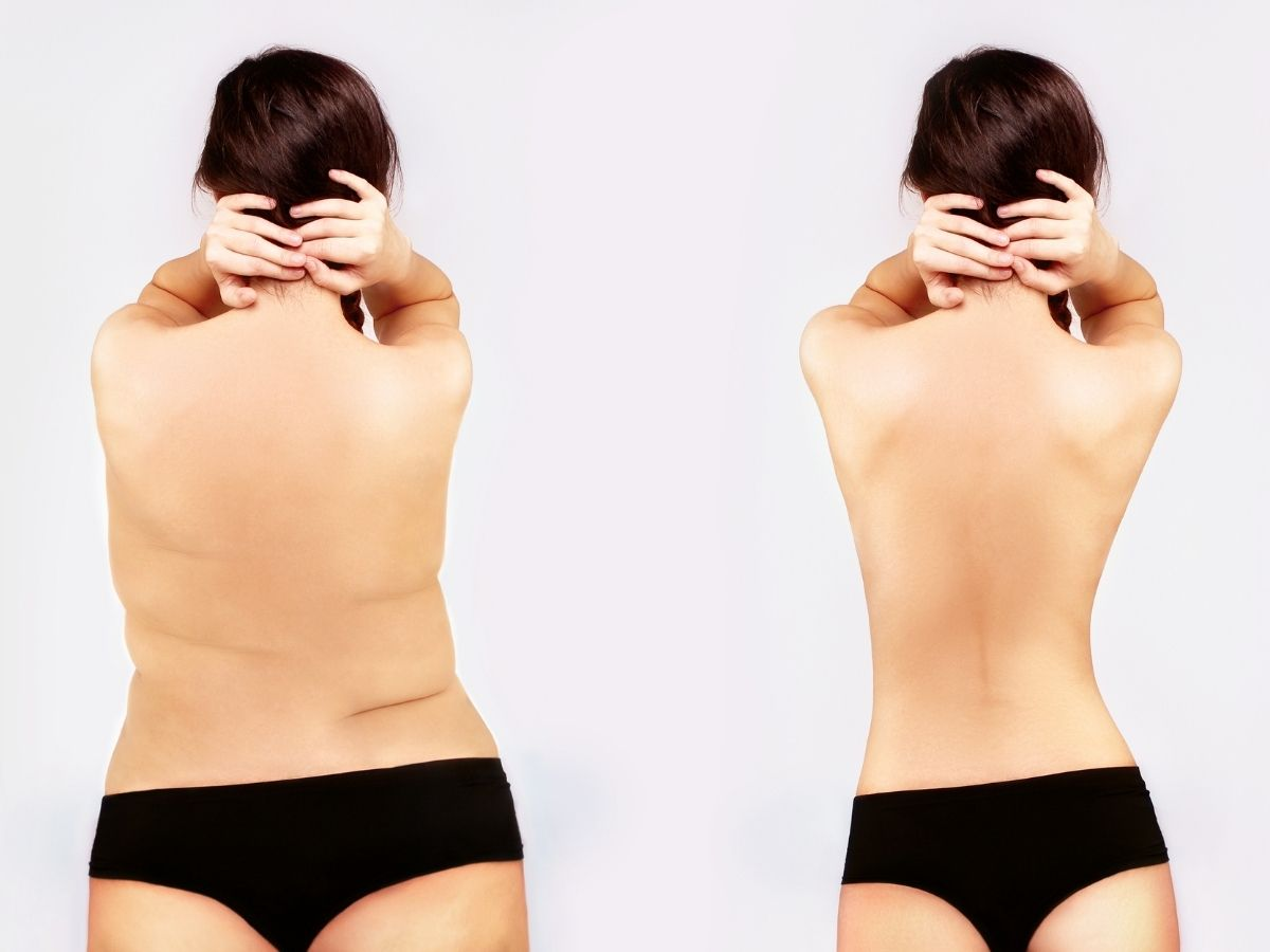 Weight Loss Singapore