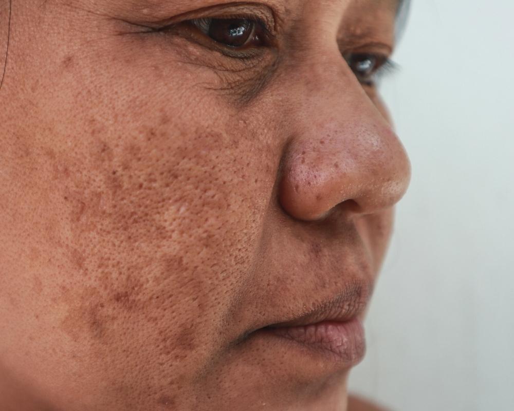 uneven skin tone singapore